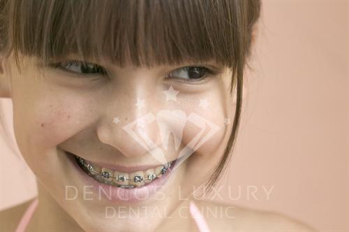 Có nên niềng răng không 2