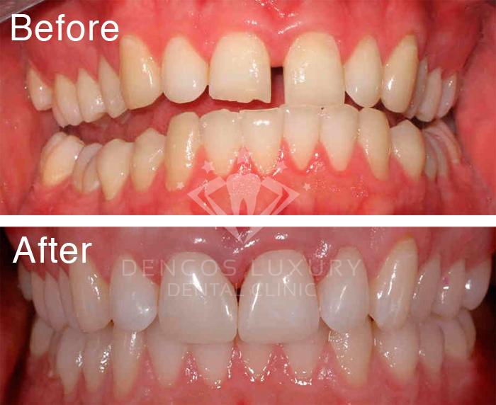 Vì sao phải hàn răng