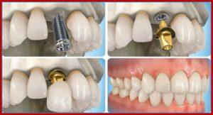 implant-cau-rang2