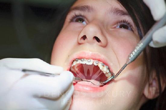 Niềng răng như thế nào 2