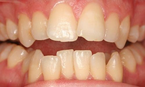 nguyên nhân gây răng vẩu 2