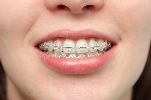 nguyên nhân gây răng vẩu 3