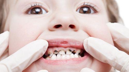 viêm tủy răng ở trẻ em
