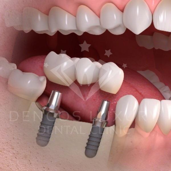 Cấy ghép implant ở đâu tốt?