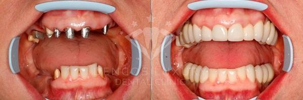 cay-ghep-implant4