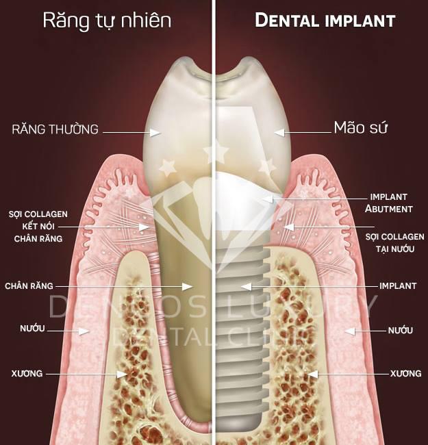 cay-ghep-rang-implant-gia-bao-nhieu-copy
