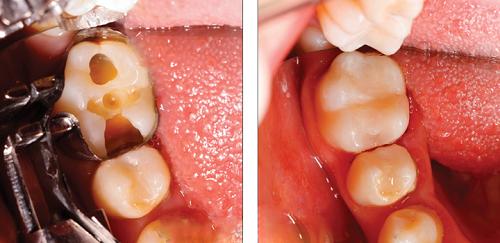 chữa tủy răng có đau không 2