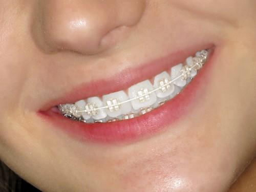 niềng răng 1 hàm có được không 3