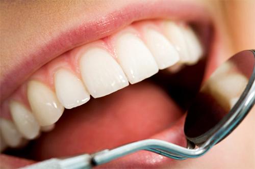 dùng chỉ nha khoa có làm thưa răng 2