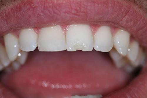 khi nào nên hàn răng 2
