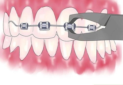 làm thế nào để răng hết vẩu 3