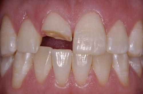 Nguyên nhân gây viêm tủy răng 2