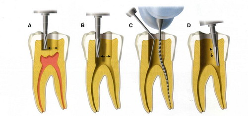 Nguyên nhân gây viêm tủy răng 3