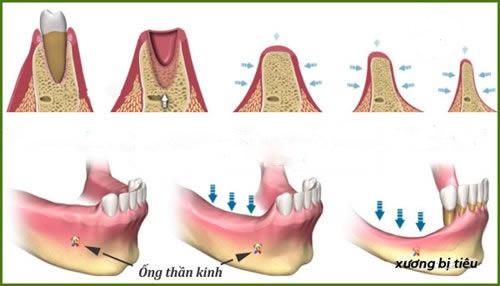 tiêu xương răng là gì