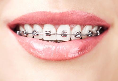 răng thưa là người như thế nào 3