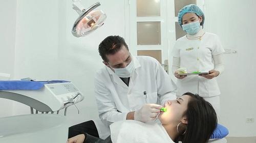 niềng răng là gì 4