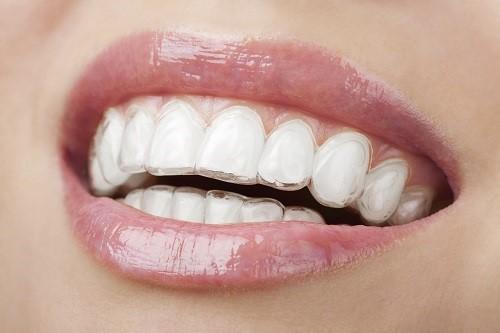 niềng răng tháo lắp lắp có hiệu quả không 2