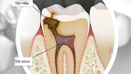 viêm tủy răng là gì