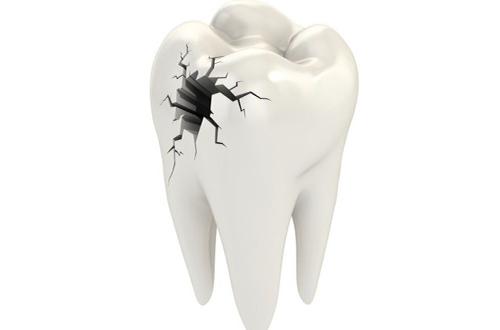 viêm tủy răng là gì 2