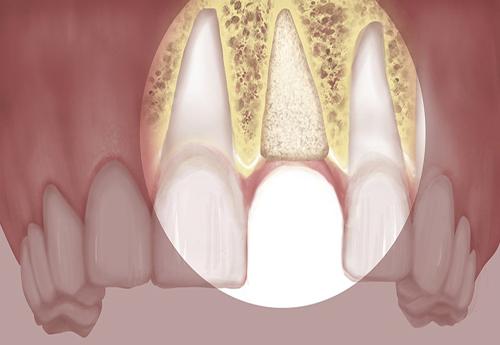 vi-sao-nen-ghep-xuong-rang-truoc-khi-trong-rang-implant1