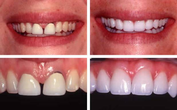 quy trình làm răng sứ