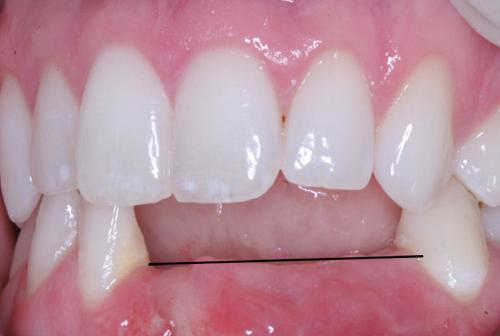 tiêu xương răng có sao không 2