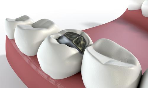nhổ răng sâu khi mang thai 4