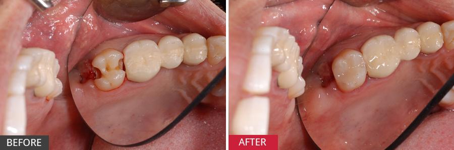 Răng hàm sâu có nên nhổ 2