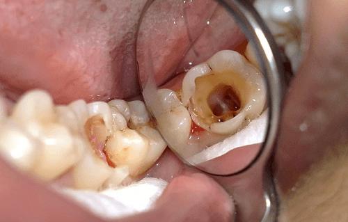 bị sâu răng