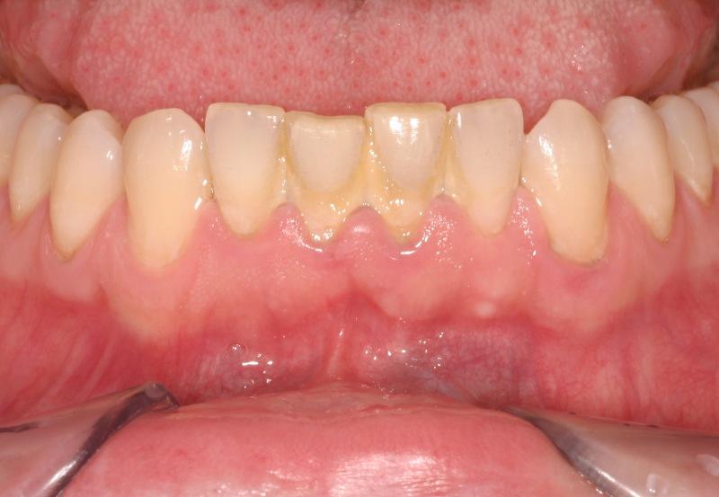 mảng bám răng