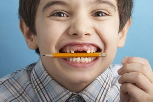 bệnh nghiến răng ở trẻ em