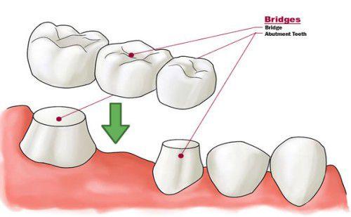 Cầu răng sứ là gì?