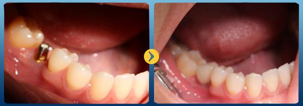 Tiêu xương ổ răng