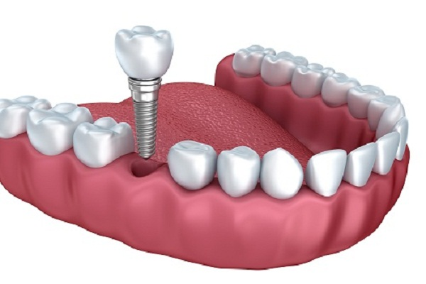 cấy răng imlpant