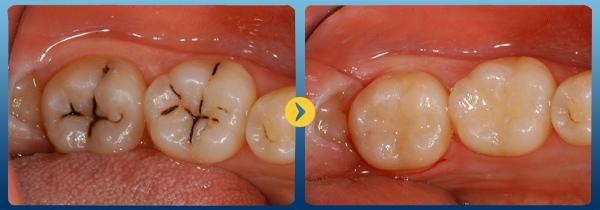 Hàn răng sâu giá bao nhiêu tiền và được thực hiện như thế nào? 1