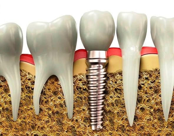 có nên trồng răng implant