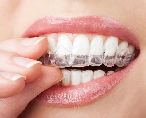 Bệnh nghiến răng ở người lớn