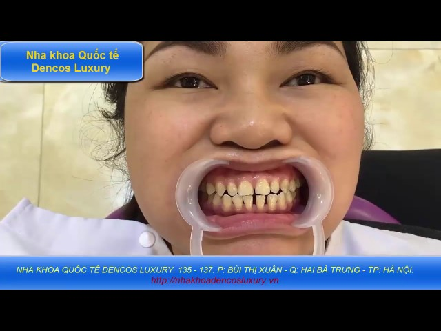 chỉnh hình răng thưa