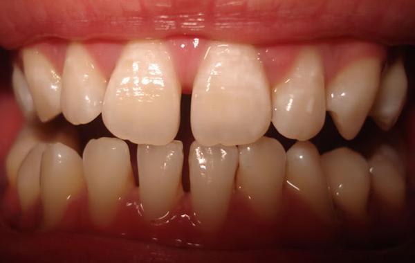 Hàn răng thưa bằng composite