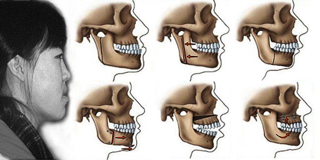 Răng móm là gì?