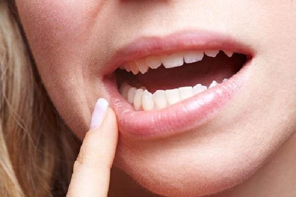 răng hàm bị lung lay