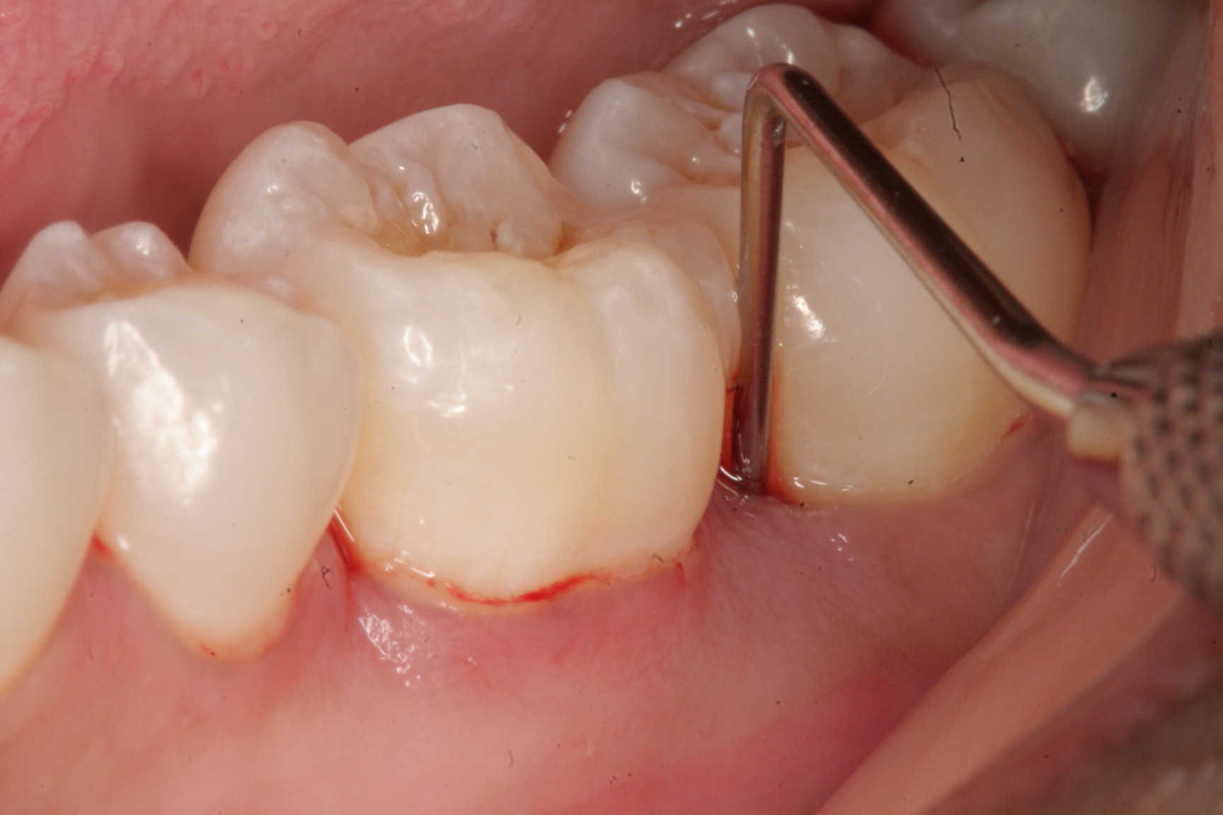 răng hàm lung lay