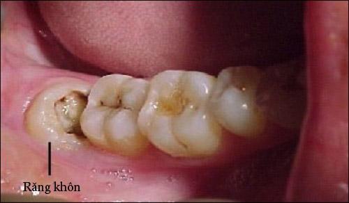 Răng khôn có trám được không?