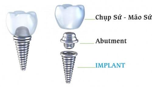 Trồng răng implant có nguy hiểm không