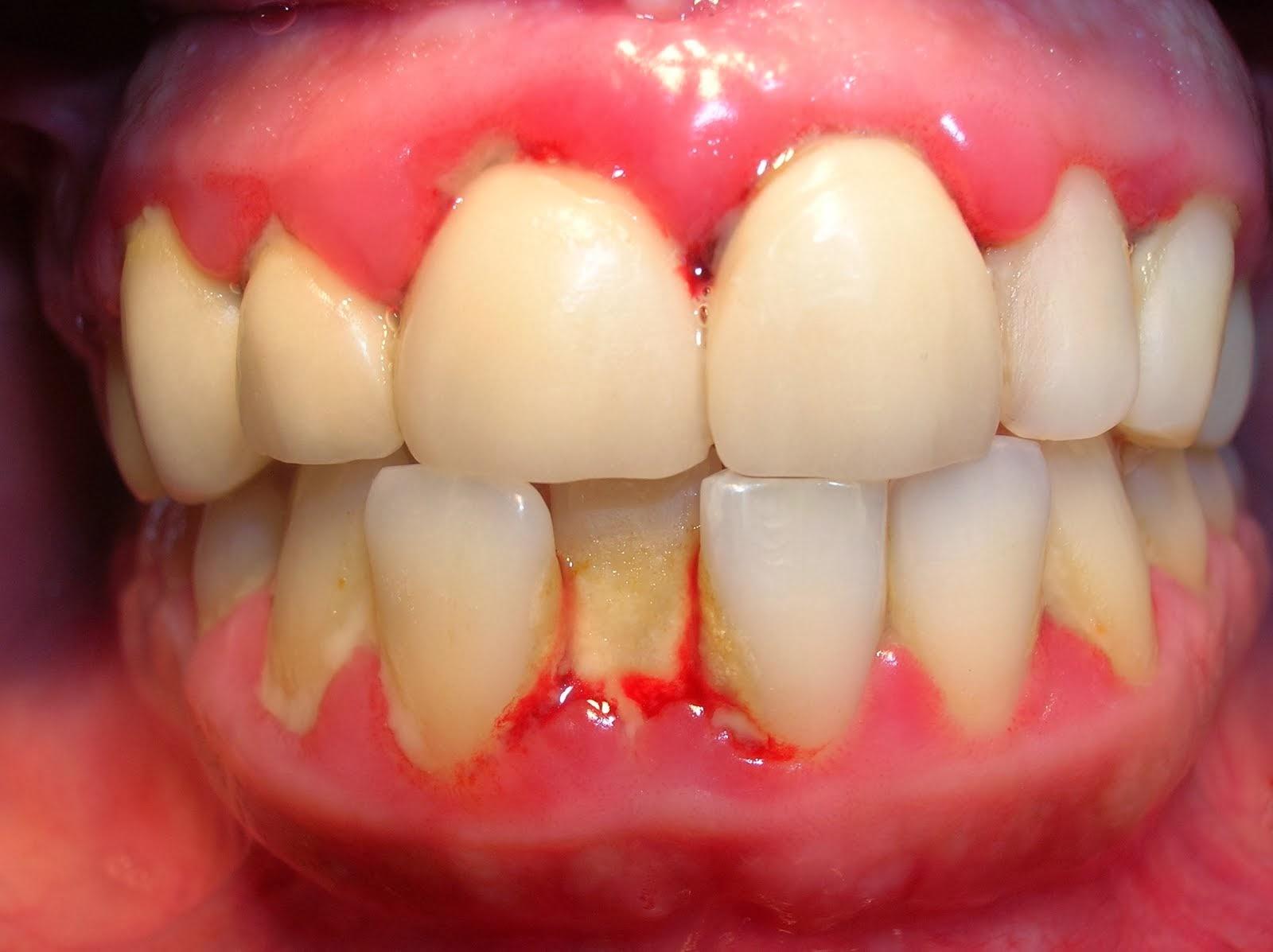Viêm nướu răng nên ăn gì