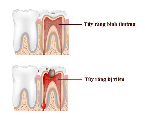 Viêm tủy răng sữa
