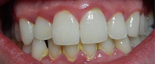 cao răng hình thành từ đâu