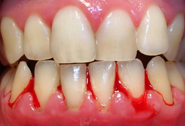 chảy máu nướu răng là bệnh gì?