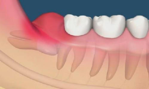 đau răng khôn phải làm sao