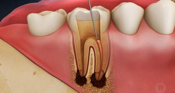 Điều trị tủy răng như thế nào?